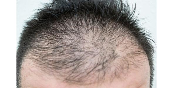 性 症 びまん 女性 原因 脱毛 脱毛症とは?症状の種類・分類と原因・治療-就労移行支援の利用条件